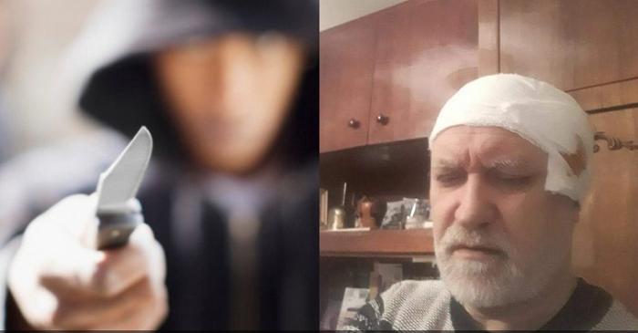 У Запоріжжі невідомі з ножем напали на двох священнослужителів УПЦ (МП)